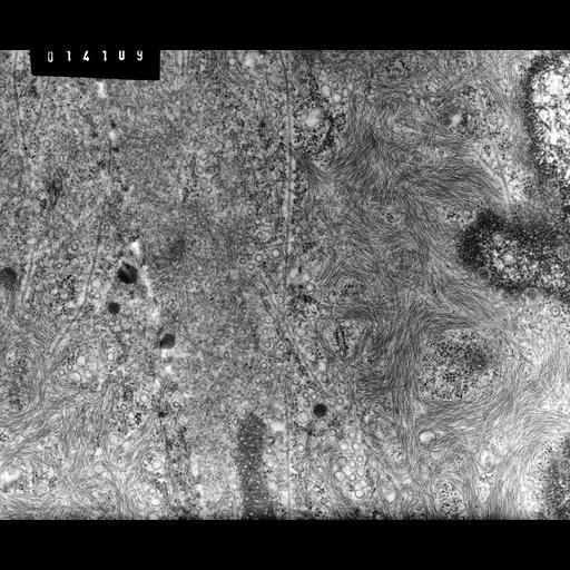 NCBI Organism:Rana catesbeiana; Cell Types:barrier epithelial cell Cell Components:intermediate filament cytoskeleton, plasma membrane; Biological process:intermediate filament cytoskeleton organization