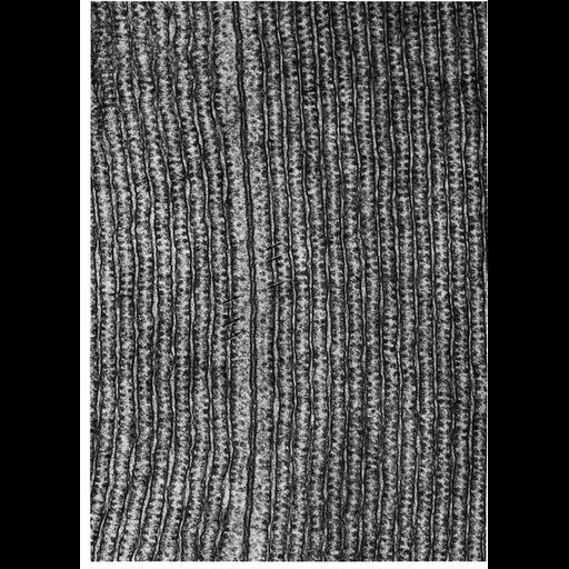 NCBI Organism:Myotis lucifugus; Cell Types:acinar cell Cell Components:endoplasmic reticulum, ribosome, rough endoplasmic reticulum, endoplasmic reticulum cisternal network; Biological process:translation