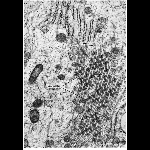 NCBI Organism:Homo sapiens; Cell Types:Sertoli cell Cell Components:annulate lamellae, nuclear pore; Biological process:nucleus organization