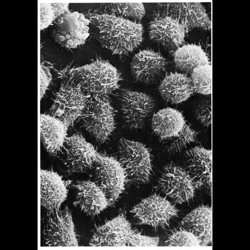 NCBI Organism:Homo sapiens; Cell Components:microvillus Biological process:cell projection organization