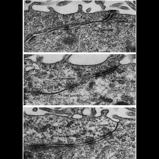 NCBI Organism:Rattus; Cell Types:ependymal cell, epithelial cell; Cell Components:zonula adherens, gap junction, desmosome; Biological process:cell-cell adhesion, cell communication, cell-cell junction organization;