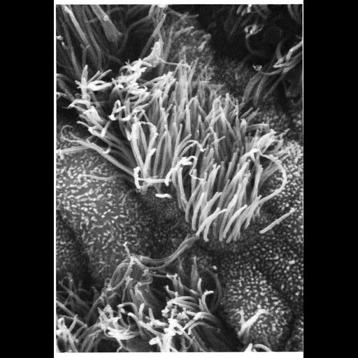 NCBI Organism:Homo sapiens; Cell Types:ciliated epithelial cell, ; Cell Components:cilium, microvillus; Biological process:, microvillus organization;