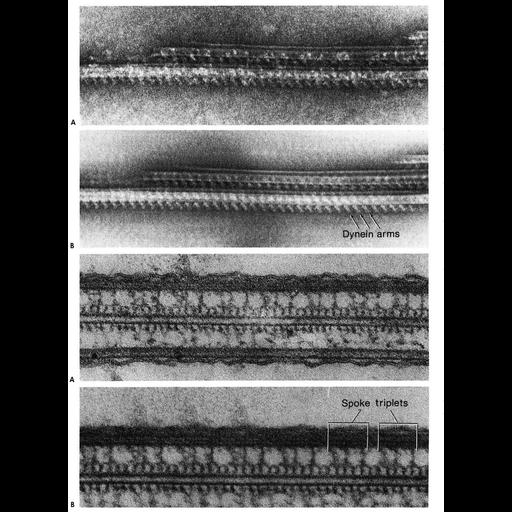 NCBI Organism:Tetrahymena sp. SPE01, Elliptio crassidens, ; Cell Types:ciliated cell, ciliated epithelial cell; Cell Components:cilium, axoneme, axonemal microtubule, axonemal dynein complex; Biological process:ciliary or flagellar motility, cilium movement, epithelial cilium movement;