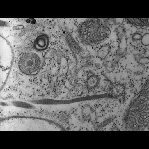 NCBI Organism:Paramecium multimicronucleatum; Cell Types:cell by organism, eukaryotic cell, , ; Cell Components:cortical cytoskeleton, cell cortex, microtubule basal body, microtubule; Biological process:cortical cytoskeleton organization, microtubule basal body organization, microtubule cytoskeleton organization, ;