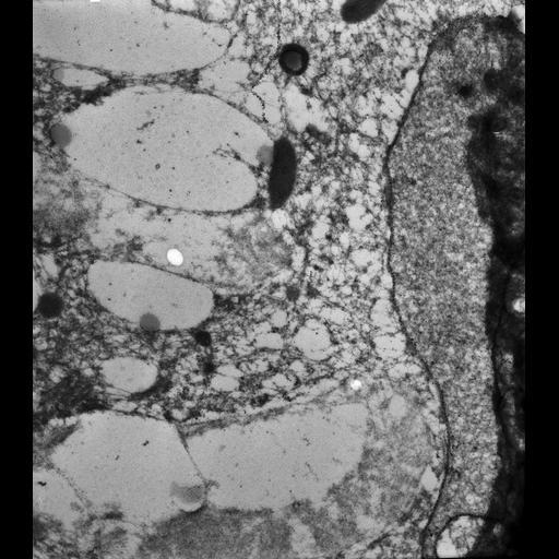 NCBI Organism:Paramecium tetraurelia; Cell Types:cell by organism, eukaryotic cell, , ; Cell Components:micronucleus, nuclear envelope, ; Biological process:micronucleus organization, nuclear division, ;