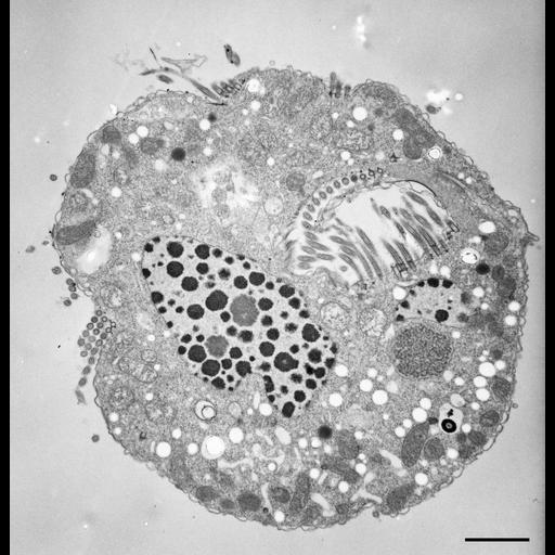 NCBI Organism:Halteria grandinella; Cell Types:cell by organism, eukaryotic cell, , ; Cell Components:macronucleus, micronucleus, oral apparatus, contractile vacuole; Biological process:oral apparatus organization, macronucleus organization, micronucleus organization;