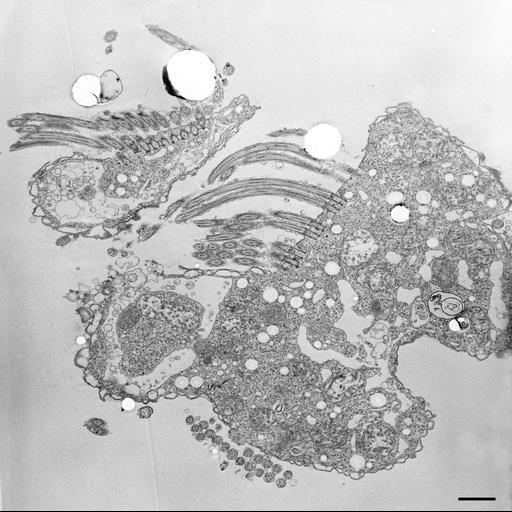 NCBI Organism:Halteria grandinella; Cell Types:cell by organism, eukaryotic cell, , ; Cell Components:contractile vacuole, contractile vacuole pore, cytoplasm; Biological process:contractile vacuole organization, contractile vacuole discharge, cytoplasm organization;
