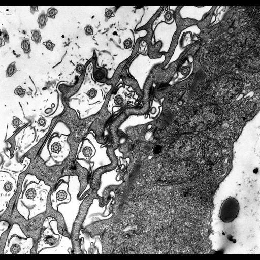 NCBI Organism:Paramecium multimicronucleatum; Cell Types:cell by organism, eukaryotic cell, , ; Cell Components:cytoproct, cell cortex, cytoplasm; Biological process:cortical cytoskeleton organization