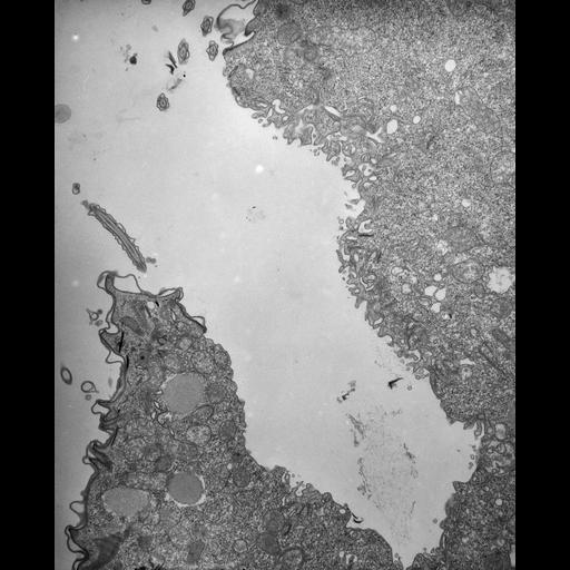 NCBI Organism:Paramecium multimicronucleatum; Cell Types:cell by organism, eukaryotic cell, , ; Cell Components:, cell cortex, cytoplasm; Biological process:defecation, cortical cytoskeleton organization;