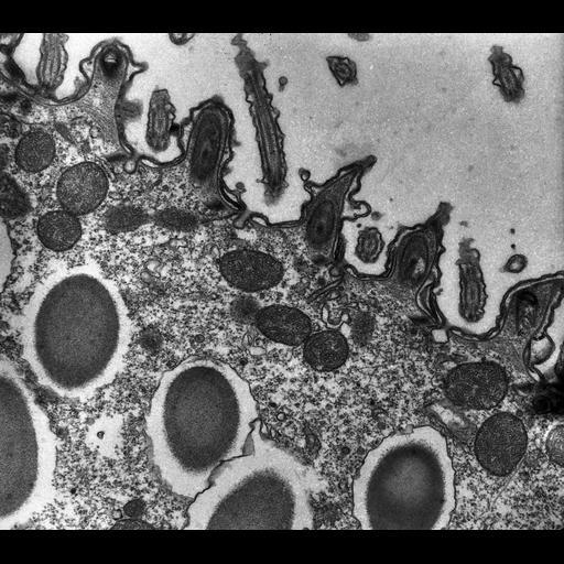 NCBI Organism:Paramecium multimicronucleatum; Cell Types:cell by organism, eukaryotic cell, , ; Cell Components:cell cortex, axoneme, trichocyst, plasma membrane, coated pit; Biological process:cortical cytoskeleton organization, , , clathrin coat assembly;