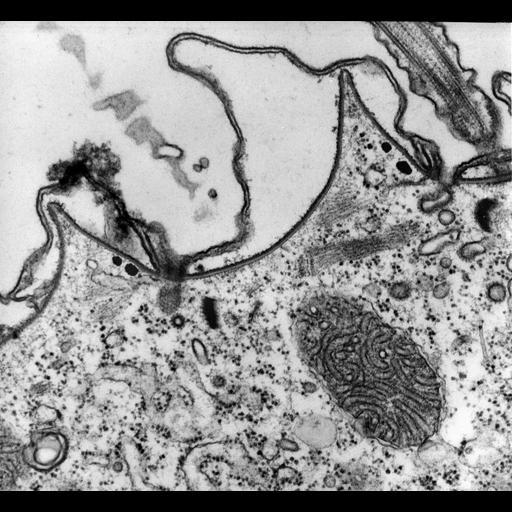 NCBI Organism:Paramecium multimicronucleatum; Cell Types:cell by organism, eukaryotic cell, , ; Cell Components:clathrin coat of endocytic vesicle, cell cortex, cytoplasm, plasma membrane; Biological process:plasma membrane organization, endosome organization, cytoplasm organization, cortical cytoskeleton organization;
