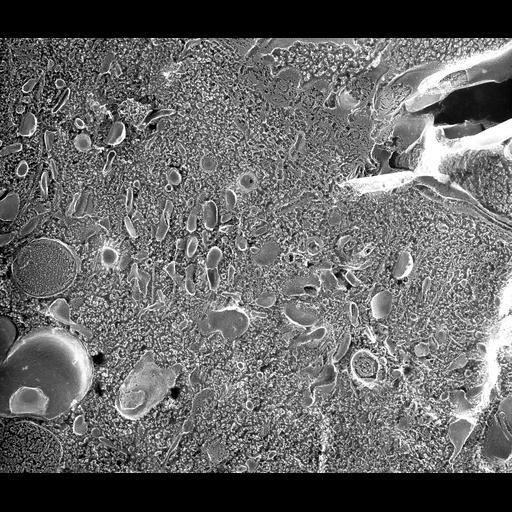NCBI Organism:Paramecium multimicronucleatum; Cell Types:cell by organism, eukaryotic cell, , ; Cell Components:cytoplasm, early endosome, coated pit, clathrin vesicle coat, vesicle membrane; Biological process:cytoplasm organization, endosome organization, vesicle coating;