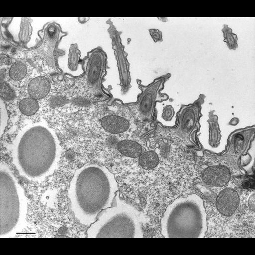 NCBI Organism:Paramecium multimicronucleatum; Cell Types:eukaryotic cell, , ; Cell Components:cell cortex, axoneme, trichocyst, coated pit, plasma membrane; Biological process:cortical cytoskeleton organization, cilium axoneme assembly, , clathrin coat assembly;
