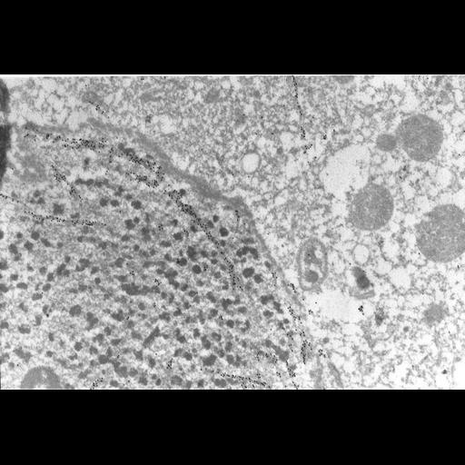 NCBI Organism:Paramecium tetraurelia; Cell Types:cell by organism, eukaryotic cell, , ; Cell Components:macronucleus, nuclear envelope, nuclear microtubule, cytoplasm; Biological process:macronucleus organization, nuclear division, microtubule-based process, microtubule-based movement;
