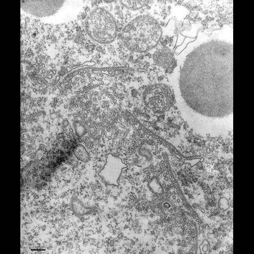 NCBI Organism:Paramecium multimicronucleatum; Cell Types:cell by organism, eukaryotic cell, , ; Cell Components:contractile vacuolar membrane, microtubule associated complex, cytoplasm; Biological process:cellular water homeostasis, microtubule-based process, cytoplasm organization;