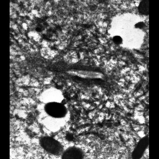NCBI Organism:Paramecium multimicronucleatum; Cell Types:cell by organism, eukaryotic cell, , ; Cell Components:contractile vacuole, contractile vacuolar membrane; Biological process:contractile vacuole organization