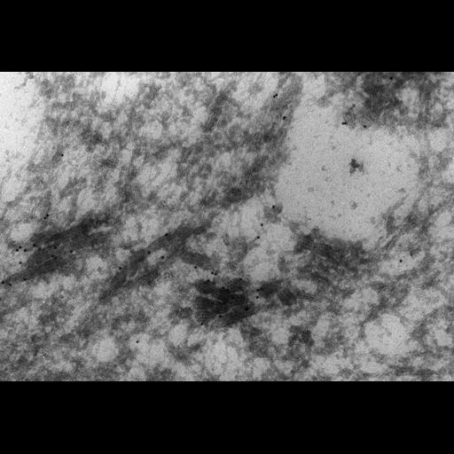 NCBI Organism:Paramecium multimicronucleatum; Cell Types:cell by organism, eukaryotic cell, , ; Cell Components:contractile vacuolar membrane, proton-transporting V-type ATPase complex; Biological process:contractile vacuole organization