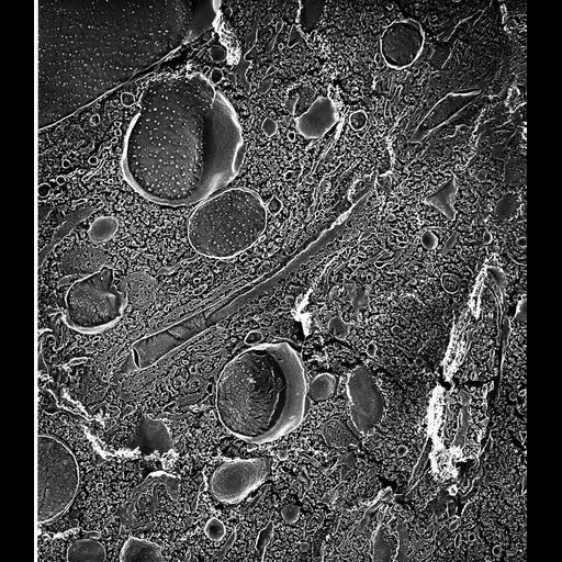 NCBI Organism:Paramecium multimicronucleatum; Cell Types:cell by organism, eukaryotic cell, , ; Cell Components:contractile vacuole, contractile vacuolar membrane, integral to contractile vacuolar membrane; Biological process:contractile vacuole organization