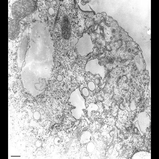 NCBI Organism:Paramecium multimicronucleatum; Cell Types:cell by organism, eukaryotic cell, , ; Cell Components:cytoproct, microtubule; Biological process:cortical microtubule organization, cortical cytoskeleton organization;