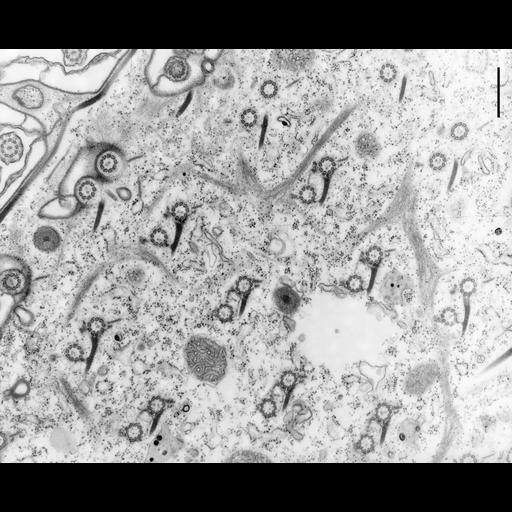 NCBI Organism:Paramecium multimicronucleatum; Cell Types:cell by organism, eukaryotic cell, , ; Cell Components:cell cortex, microtubule basal body, , microtubule, trichocyst; Biological process:cortical microtubule organization, microtubule cytoskeleton organization, , microtubule basal body organization;