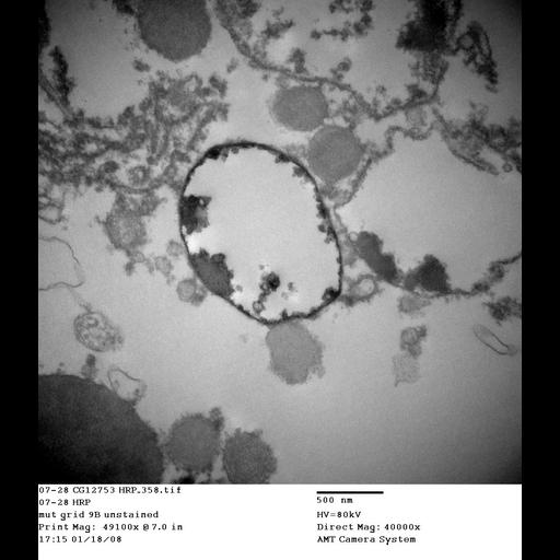NCBI Organism:Drosophila melanogaster; Cell Types:garland cell Cell Components:endosome Biological process:endocytosis