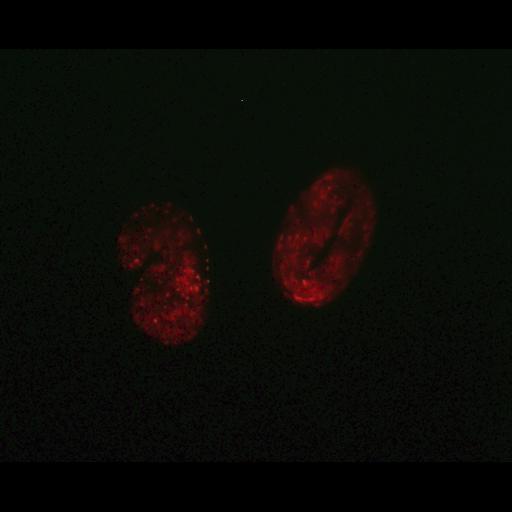 NCBI Organism:Caenorhabditis elegans; Biological process:autophagy