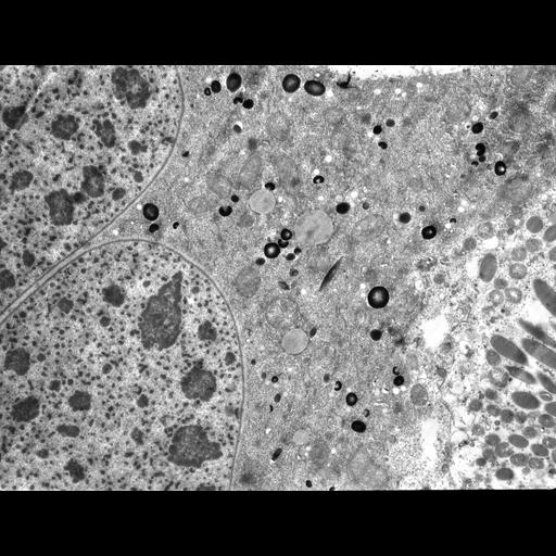 NCBI Organism:Didinium nasutum, Paramecium sp., ; Cell Types:cell by organism, eukaryotic cell, , ; Cell Components:macronucleus, food vacuole, cytoplasm, trichocyst; Biological process:macronucleus organization, response to food, digestion, cytoplasm organization;