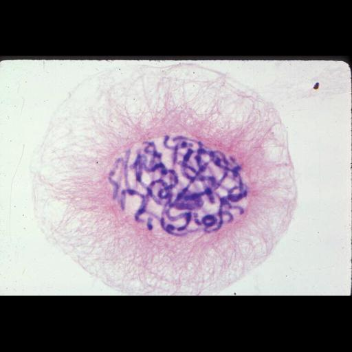 NCBI Organism:Haemanthus katharinae; Cell Components:nuclear chromosome, spindle; Biological process:mitosis