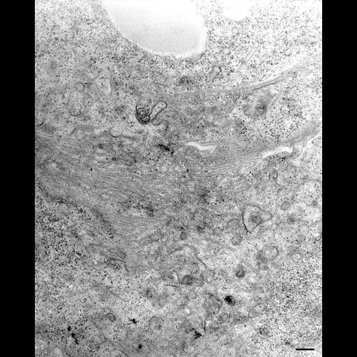 NCBI Organism:Paramecium multimicronucleatum; Cell Types:cell by organism, eukaryotic cell, , ; Cell Components:contractile vacuolar membrane, integral to contractile vacuolar membrane, intrinsic to contractile vacuolar membrane, cytoplasmic microtubule; Biological process:contractile vacuole organization, cytoplasmic microtubule organization;