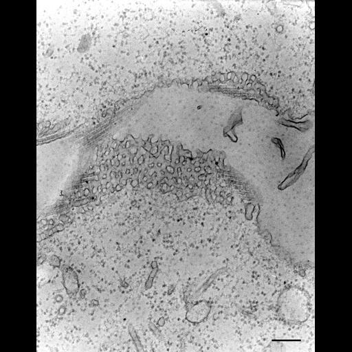 NCBI Organism:Paramecium multimicronucleatum; Cell Types:cell by organism, eukaryotic cell, , ; Cell Components:contractile vacuole, cytoplasmic microtubule, contractile vacuolar membrane, intrinsic to contractile vacuolar membrane; Biological process:contractile vacuole organization, cytoplasmic microtubule organization;