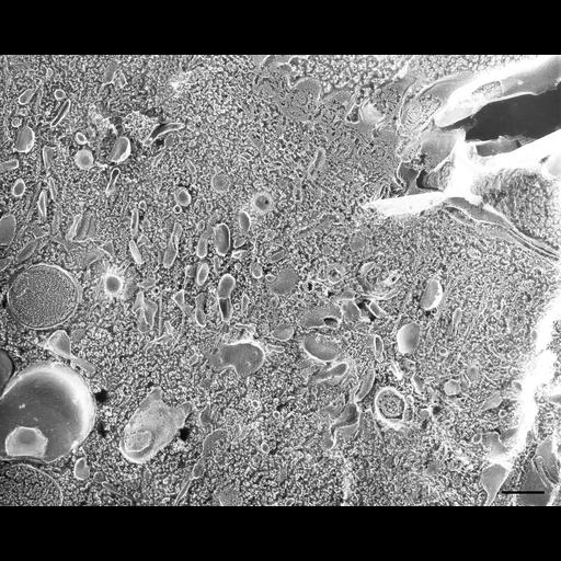 NCBI Organism:Paramecium multimicronucleatum; Cell Types:cell by organism, eukaryotic cell, , ; Cell Components:cytoplasm, early endosome, clathrin coat of coated pit, vesicle membrane; Biological process:cytoplasm organization, clathrin coat assembly, endosome organization;