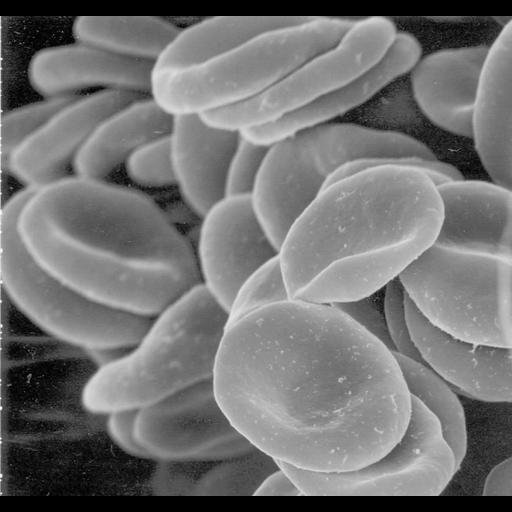 NCBI Organism:Homo sapiens; Cell Types:erythrocyte Biological process:gas transport
