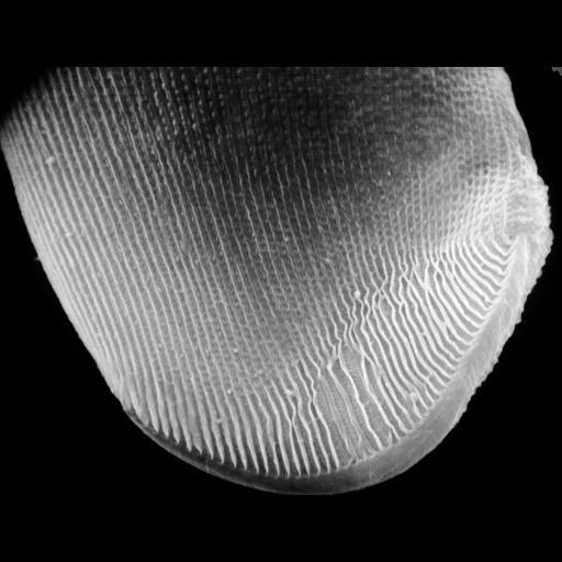NCBI Organism:uncultured scuticociliate, , ; Cell Types:cell by organism, eukaryotic cell, , ; Cell Components:cell cortex, cilium, , attachment organelle, attachment organelle membrane; Biological process:cortical cytoskeleton organization, , substrate-dependent cell migration, cell attachment to substrate;