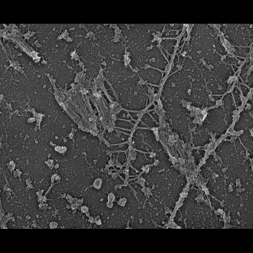NCBI Organism:Rattus; Cell Types:fibroblast Cell Components:myosin II complex, intermediate filament, ;