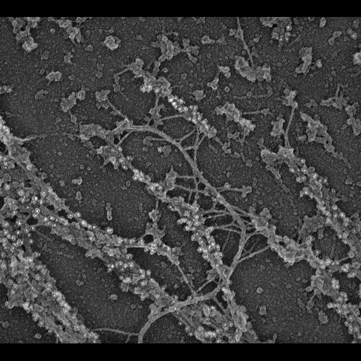 NCBI Organism:Rattus; Cell Types:fibroblast Cell Components:intermediate filament, , myosin II complex;