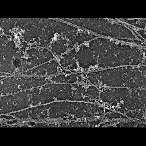 Cell Types:fibroblast Cell Components:, microtubule, intermediate filament;