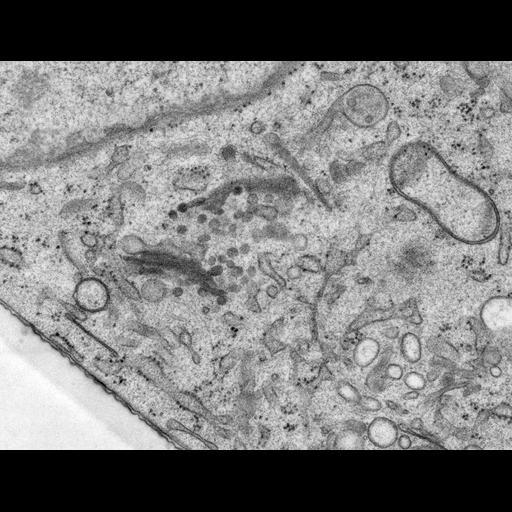 NCBI Organism:Rattus norvegicus; Cell Types:epithelial cell Cell Components:Golgi apparatus, Golgi cisterna; Biological process:Golgi organization, Golgi vesicle budding, Golgi vesicle transport;