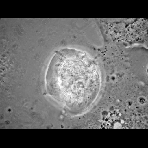 NCBI Organism:Balamuthia mandrillaris; Cell Types:cell by organism, eukaryotic cell, , ; Cell Components:cell, pseudopodium; Biological process:pseudopodium organization, pseudopodium assembly, pseudopodium retraction;