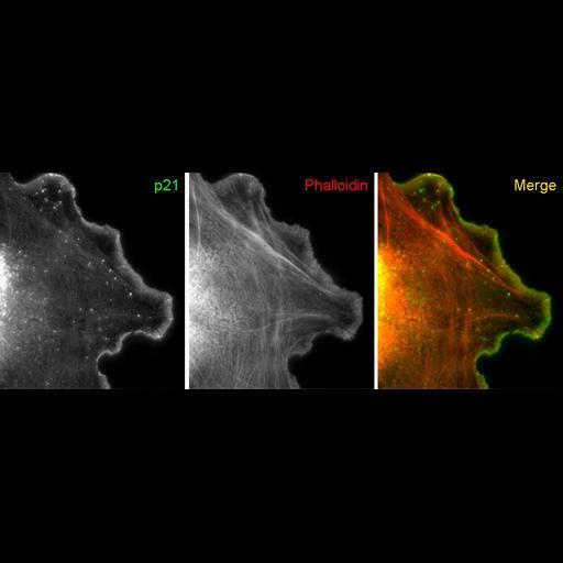 Cell Types:fibroblast Cell Components:lamellipodium, actin cytoskeleton; Biological process:cellular macromolecule localization