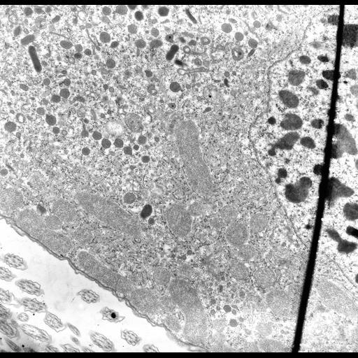 NCBI Organism:uncultured Scuticociliatia, , ; Cell Types:cell by organism, eukaryotic cell, , ; Cell Components:macronucleus, cytoplasm, mitochondrion, mitochondrial crista, mitochondrial envelope, peroxisome, endosome; Biological process:macronucleus organization, mitochondrion organization, cytoplasm organization, endosome localization;