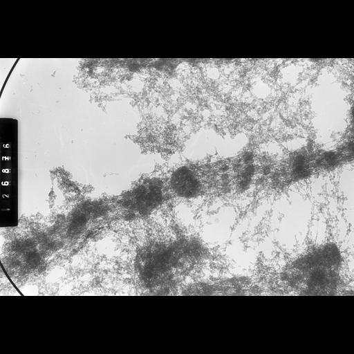 NCBI Organism:Drosophila melanogaster; Cell Types:fat body cell Cell Components:polytene chromosome