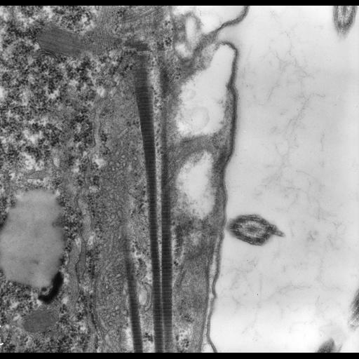 NCBI Organism:uncultured scuticociliate, , ; Cell Types:cell by organism, eukaryotic cell, , ; Cell Components:cell cortex, dense fibrillar component, microtubule, plasma membrane, cortical microtubule, ; Biological process:cortical cytoskeleton organization, fibril organization, microtubule cytoskeleton organization, cortical microtubule organization;