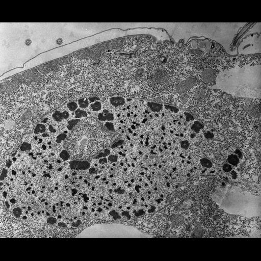 NCBI Organism:Tetrahymena pyriformis; Cell Types:cell by organism, eukaryotic cell, , ; Cell Components:macronucleus, nucleolus, nucleolus organizer region; Biological process:macronucleus organization, nucleolus organization;