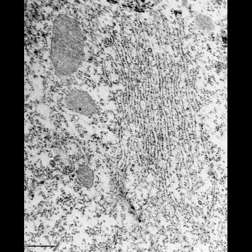 NCBI Organism:Tetrahymena pyriformis; Cell Types:cell by organism, eukaryotic cell, , ; Cell Components:rough endoplasmic reticulum, peroxisome; Biological process:cytoplasm organization