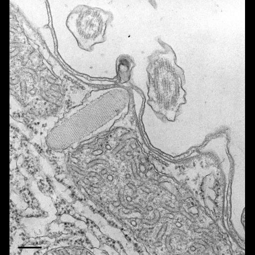 NCBI Organism:Tetrahymena pyriformis; Cell Types:cell by organism, eukaryotic cell, , ; Cell Components:cell cortex, cell cortex part, ; Biological process:cortical cytoskeleton organization