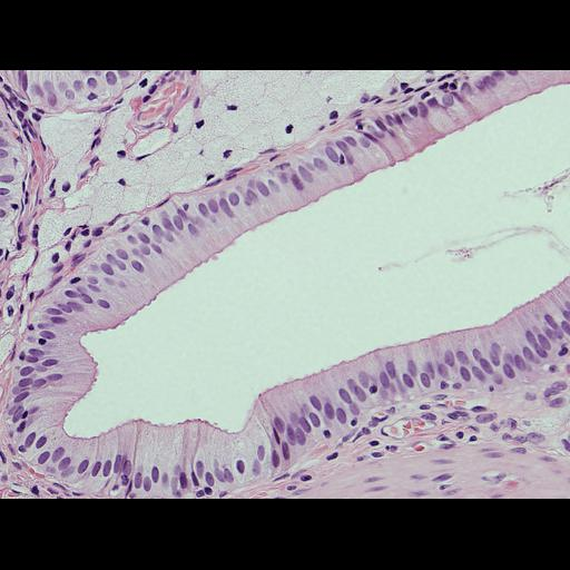 NCBI Organism:Homo sapiens; Cell Types:epithelial cell, foam cell; Cell Components:nucleus Biological process:leukocyte chemotaxis involved in inflammatory response, acute inflammatory response;