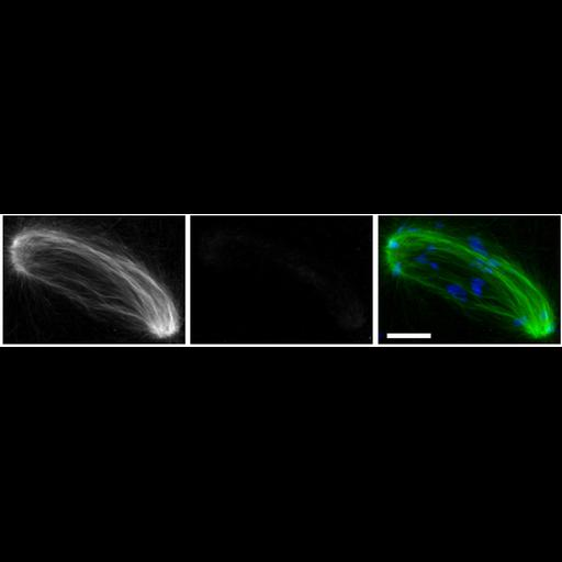 NCBI Organism:Mus musculus; Cell Types:oocyte Cell Components:microtubule, microtubule organizing center part, nuclear chromosome; Biological process:meiotic spindle organization, microtubule organizing center organization, RNA interference;