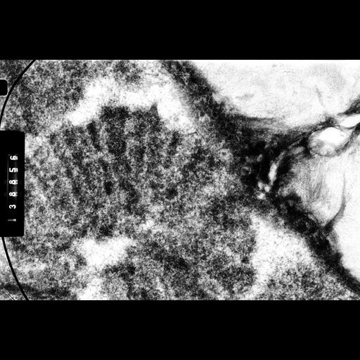 NCBI Organism:Drosophila melanocephala; Cell Components:polytene chromosome