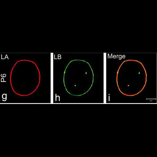 NCBI Organism:Homo sapiens; Cell Types:fibroblast Cell Components:nuclear envelope