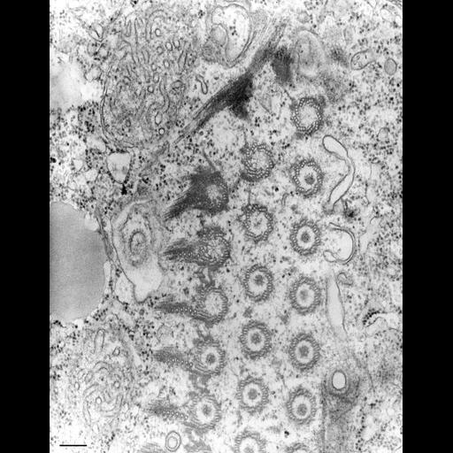 NCBI Organism:Tetrahymena pyriformis; Cell Types:cell by organism, eukaryotic cell, , ; Cell Components:oral apparatus Biological process:oral apparatus organization